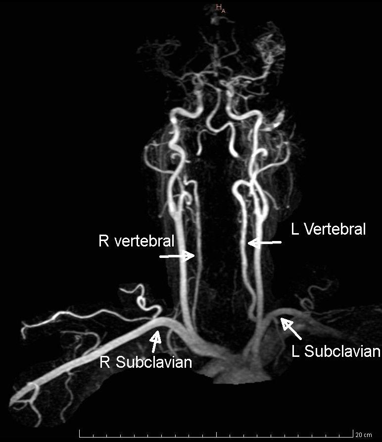 Vascular surgery anatomy