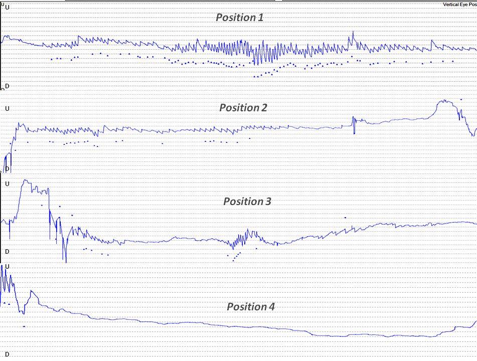 Epley-CRP maneuver for BPPV