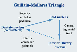 triangle of Guillain Mollaret