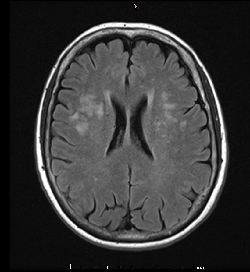 Common Cerebral White Matter >> Periventricular White Matter Lesions