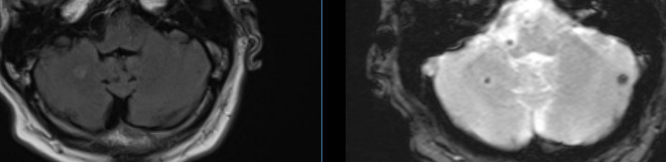 Periventricular White Matter Lesions
