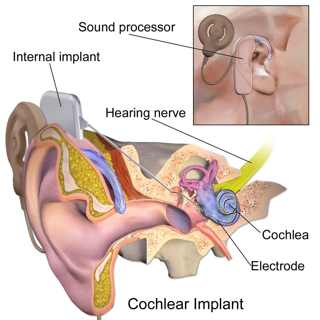 the ability to hear and the cochlear implants for the children in the medical research technology