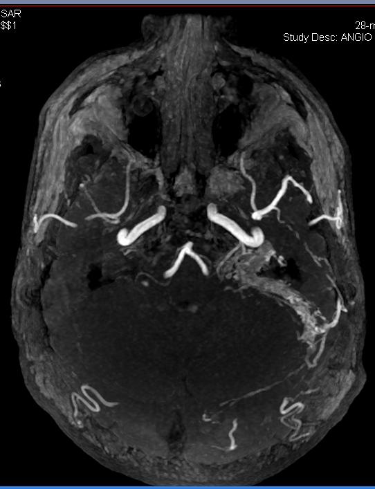 Pulsatile Tinnitus
