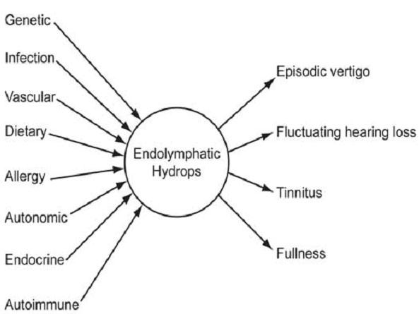 Causes Of Meniere S Disease