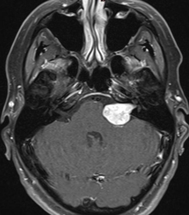 Acoustic Neuroma Diagnosis