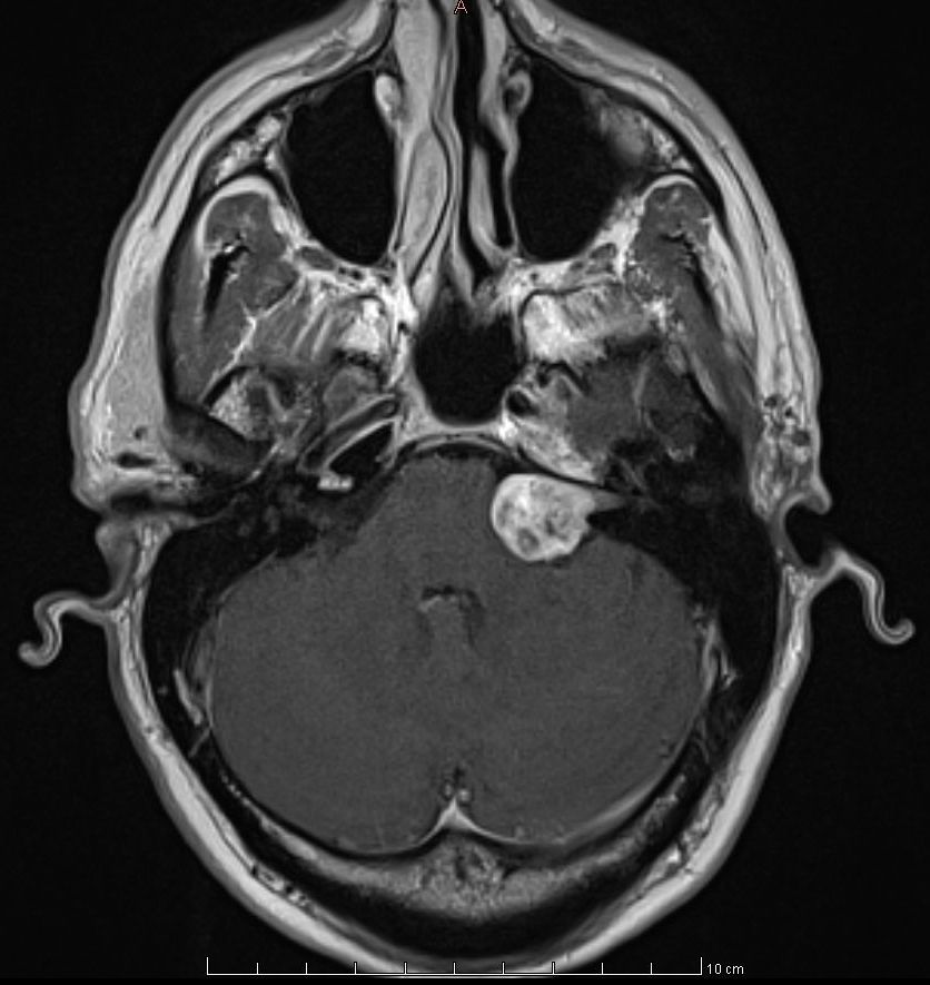 Acoustic Neuroma Diagnosis