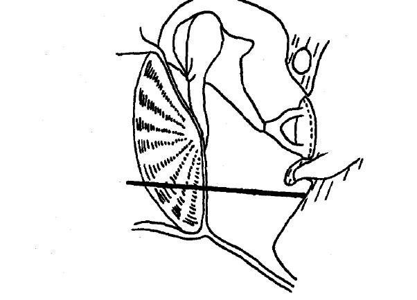 Ecog Electrocochleography